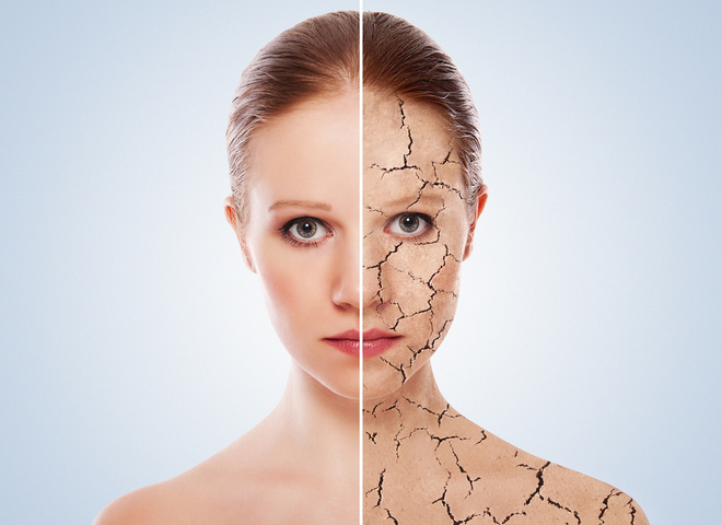 Чому тріскається шкіра