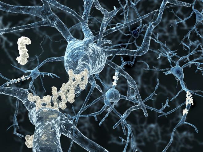 Ізраїльські вчені перемогли хворобу Альцгеймера