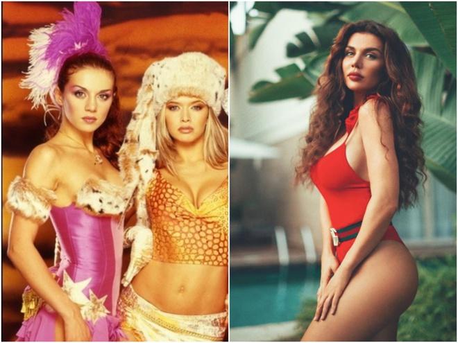 Анна Седокова до и после пластических операций