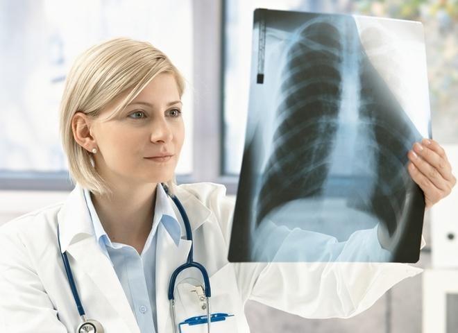 профілактика туберкульозу