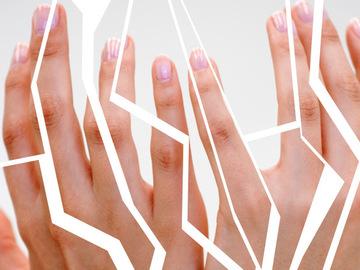 Що робити, якщо тріскається шкіра на руках