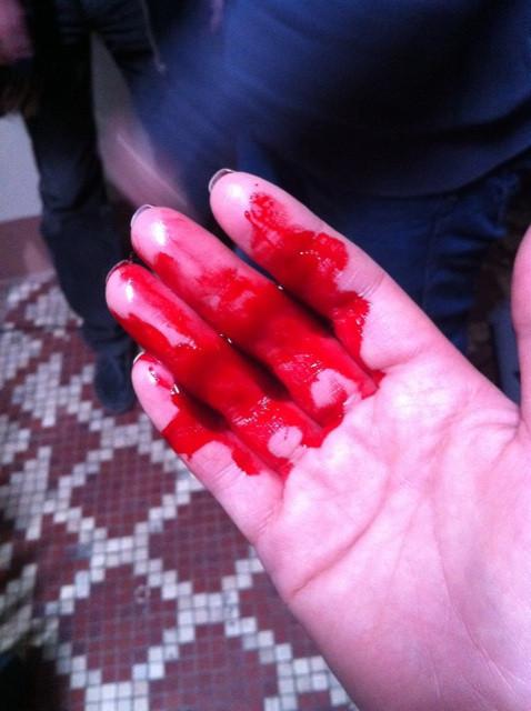 перевязываю мошонку, рука в крови фото для