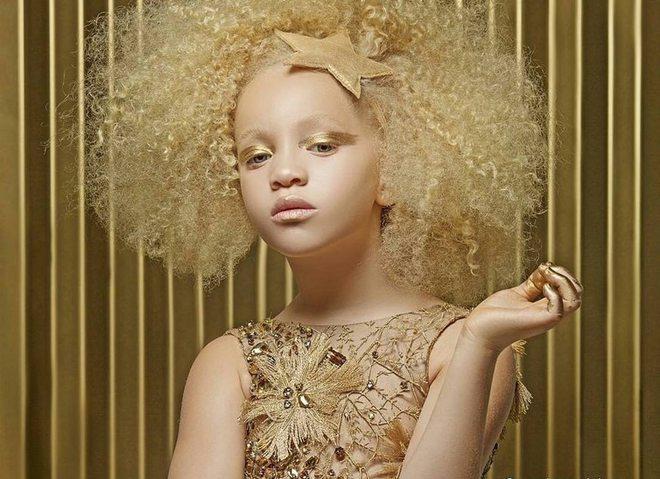 Девочка-альбинос Ава Кларк покоряет модельный бизнес