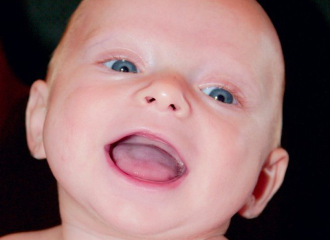 Как лечат зубки малышей