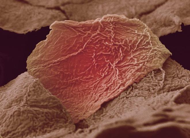 Груди клитор под микроскопом картинки киска секс