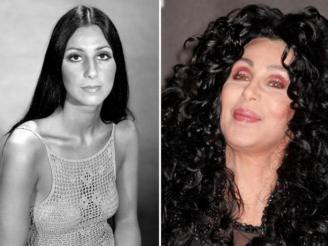 Елена бушина фото до и после пластики конечно, полном