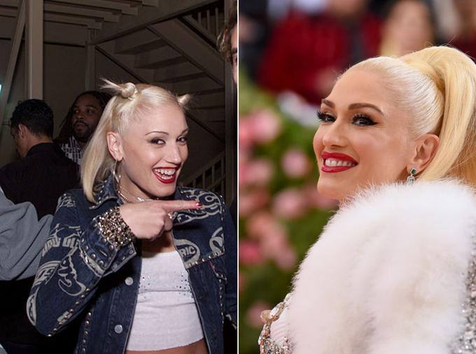 Во все 32: фото звезд до и после реставрации зубов