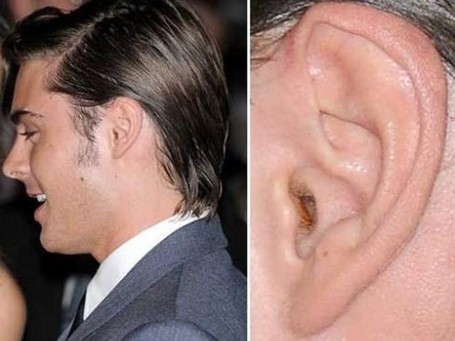 Скопилась грязь в дырке уха