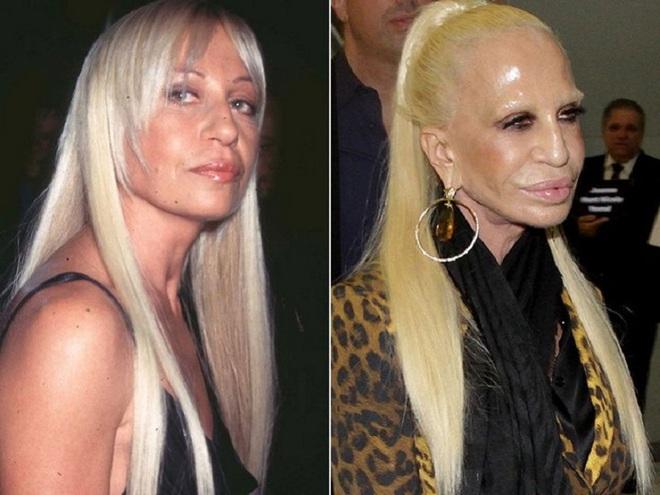 Знаменитости до и после пластики