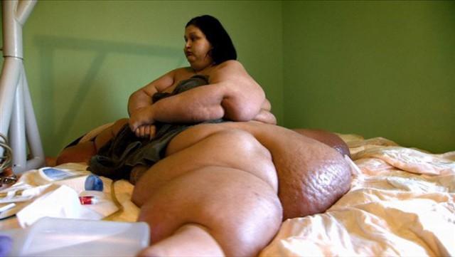 Майра Розалес - женщина, которая похудела на 408 кг